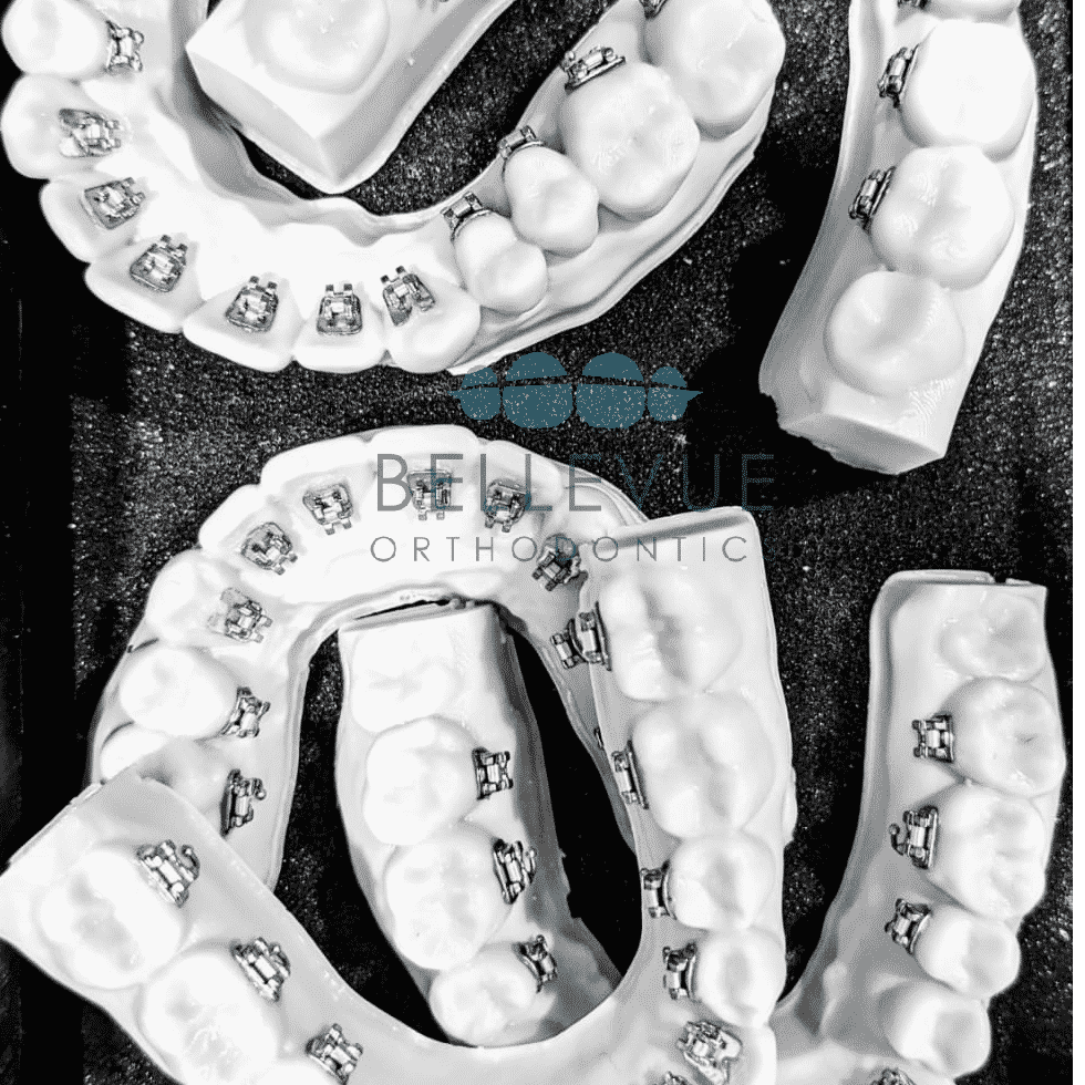 Lingual braces on a 3D printed model with an indirect tray